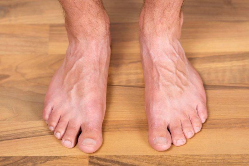 Молитва от грибка ногтей на ногах