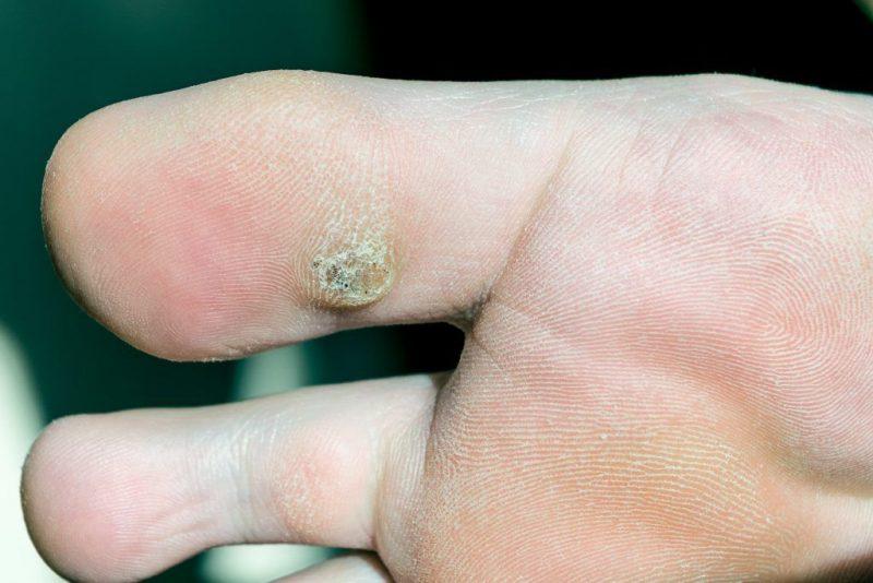 Применяем заговоры для избавления от шипицы — кожных наростов