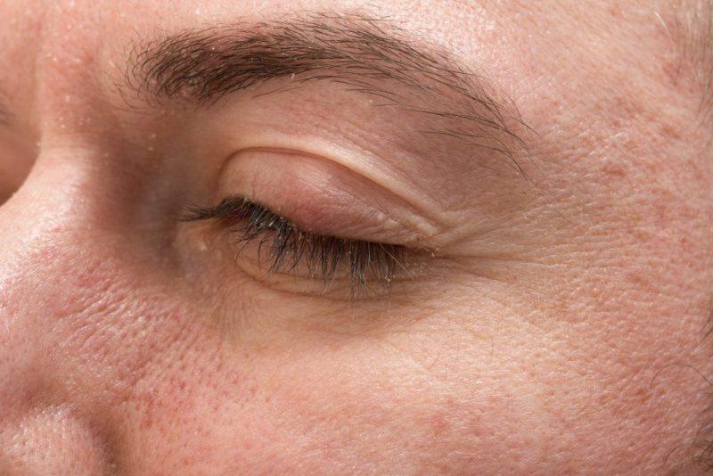 Как вылечить ячмень на глазу в домашних условиях